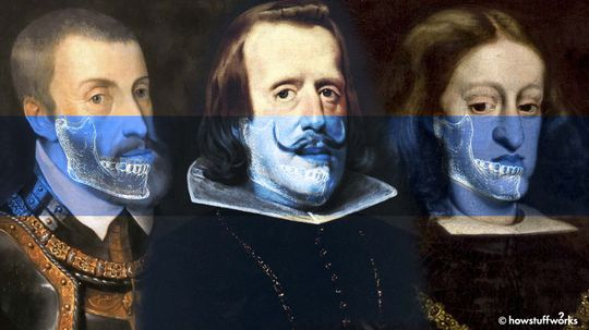 How Centuries of Inbreeding Led to the Distinctive 'Habsburg Jaw'