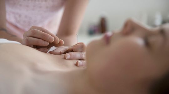 Acupuncture Doesn't Help Women With PCOS Get Pregnant