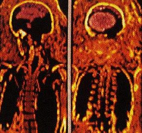 """A CAT scan of an Egyptian mummy from the second century. Researchers at the University of Illinois scanned the mummy one """"slice"""" at a time, and then used this data to put together a 3-D computer model of the body."""
