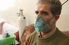 Iranian chemical weapon victim exposed to Iraqi mustard gas during the Iran-Iraq war, breathes through a respirator. Tens of thousands of Iranians were exposed to Iraqi gas attacks.
