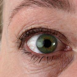 Under-eye circles? No, thank you!