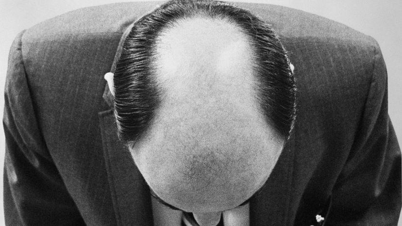 half bald man
