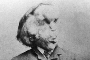 "Joseph Merrick, the ""Elephant Man,"" poses for a photo."