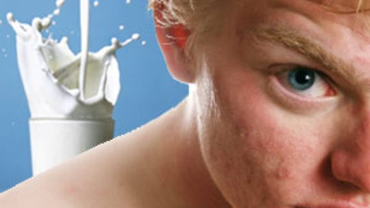 Is milk good for acne?