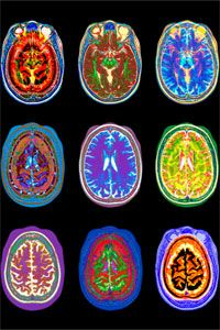 Pictured are nine different MRI scans from a woman's brain. MRI technology has been critical to understanding how the human mind works.