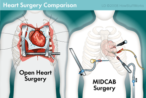 Traditional open heart surgery and a minimally invasive bypass. Note that with MIDCAB surgery only a 2.5 inch (6 cm) opening between your ribs is necessary.