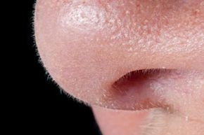 Do you have enlarged pores? See pictures of getting beautiful skin.
