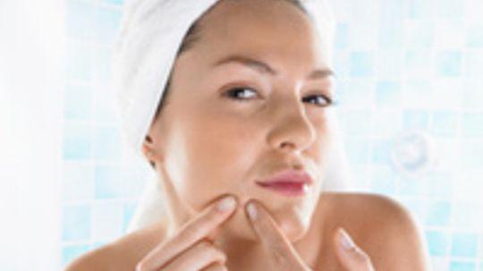 Top 10 Tips for Moisturizing Acne-prone Skin