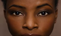 People of color are especially prone to post-acne scarring, but this can be prevented with certain moisturizers.
