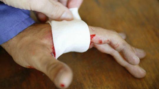 Should you moisturize a cut?