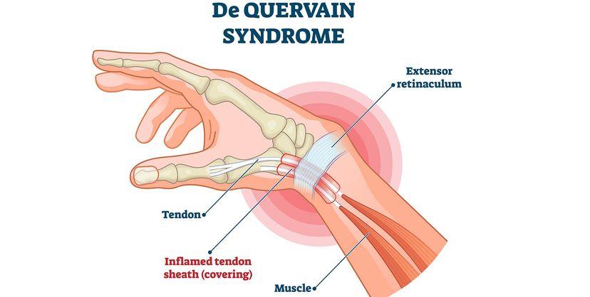 de Quervain syndrome