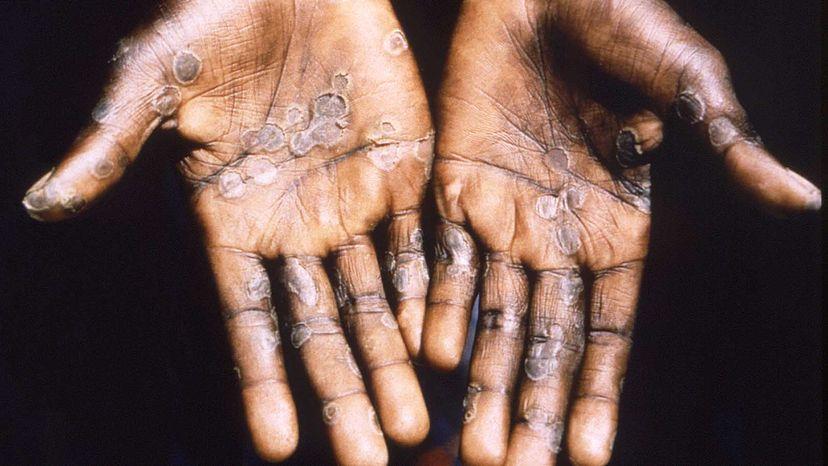 monkeypox infection