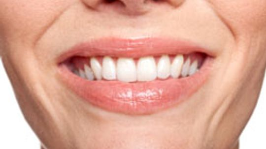 10 Steps to a More Kissable Mouth