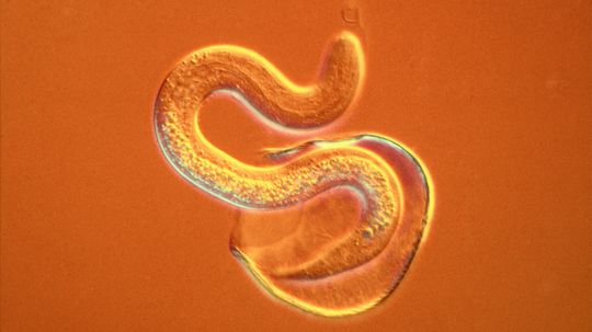 Nematodes: Do We Still Need to Worry About Roundworms and Bare Feet?