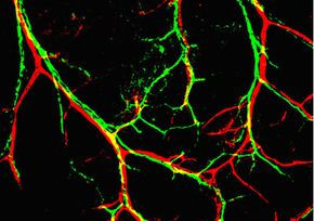 Nerves (green) and arteries (red) in the embryonic limb skin. See more brain pictures.