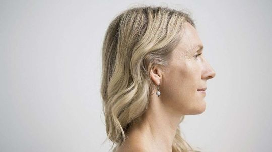 Life Expectancy for White Women in U.S. Decreases