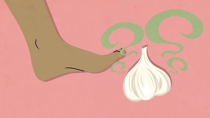 Foot and garlic illustration