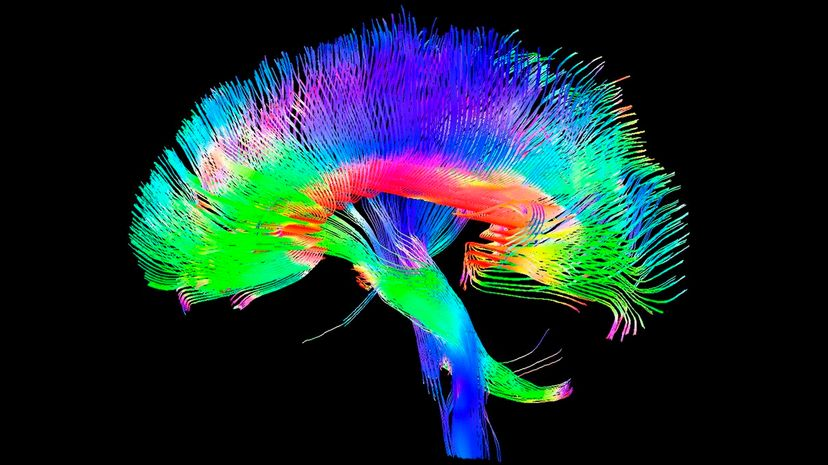 Scientists suggest an individual's brainwaves may be unique enough to act as identification. TOM BARRICK, CHRIS CLARK, SGHMS/SCIENCE PHOTO LIBRARY/Getty Images