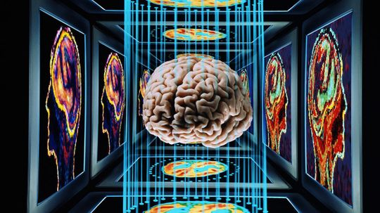 Science Takes Another Step Toward Erasing Painful Memories