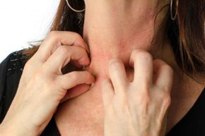 Itchy hives may respond to a tricyclic antidepressant if other treatments don't help.