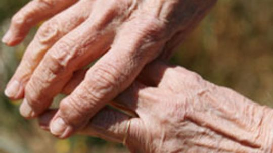 Is it easy to cope with mild osteoarthritis of the spine?