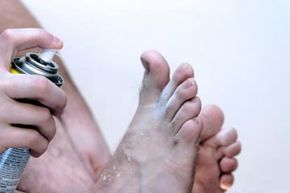 Skin Problems Image Gallery Athlete's foot is a common foot fungus that seems to strike some people more than others. See more pictures of skin problems.