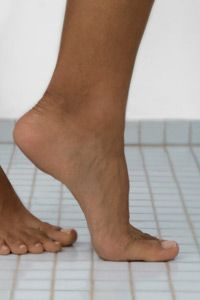 You can get tinea, the fungal infection that causes athlete's foot, practically anywhere on your skin. See more pictures of skin problems.