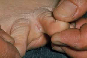 This case of athlete's foot has made a fissure between the toes. Exactly what you need in college.