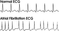 Graphic of a normal cardiogram compared to a cardiogram for somebody with atrial fibrillation
