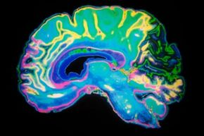 Researchers supported by NIMH and other NIH Institutes are scrutinizing the structures and functions of the brain for clues as to how a brain with autism differs from the normal brain.