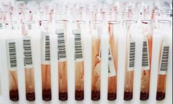Some routine blood work can tell you how your cholesterol is doing.