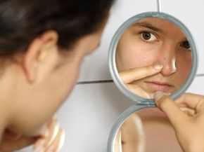 How can you get rid of annoying red blotches?