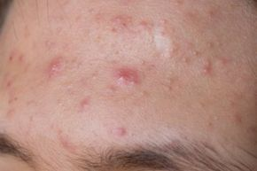 You probably don't think about acne until it demands your attention in the form of a bright-red outbreak that can't be avoided.
