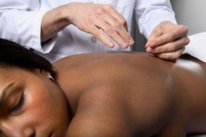 Several recent studies have shown the benefits of using acupuncture as, or in conjunction with, an infertility treatment.