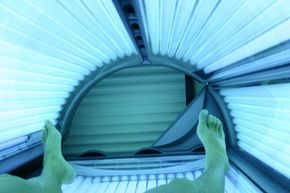 """Tanning addiction is dubbed """"tanorexia."""""""