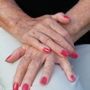Are age spots a necessary component of growing older, or can they be avoided? See more pictures of skin problems.