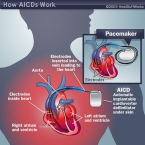 The main components of an automatic implantable cardioverter defibrillator