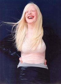 Young woman with albinism