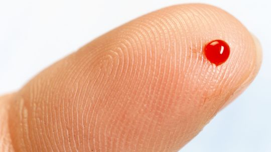 Is it possible to be allergic to your own blood?