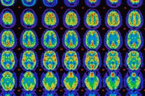 PET scans comparing an Alzheimer's brain with a healthy brain. The red color shows maximum healthy blood flow, the yellow-green indicates less blood flow and dark green and purple-blue areas indicate no flow.