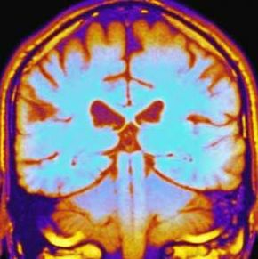 An MRI of a normal brain. MRIs and CAT scans can reveal parts of the brain that may be contributing to symptoms of amnesia.
