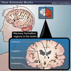 Primary regions of the brain where memories are made and stored.