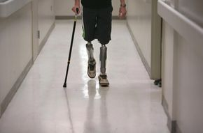 Physical therapy is critical for amputees learning to compensate for lost limbs.
