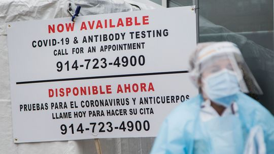 What You Should Know About Antibody Testing