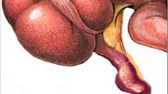 What is an appendix and what causes appendicitis?