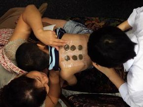 A doctor applies herbal medicine to a patient's back at a traditional Chinese medicine clinic in Beijing.