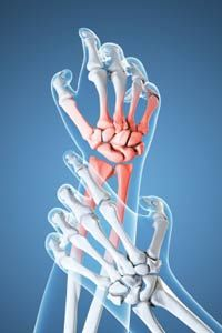 Arthritis can make daily tasks difficult -- and it hurts like the dickens.