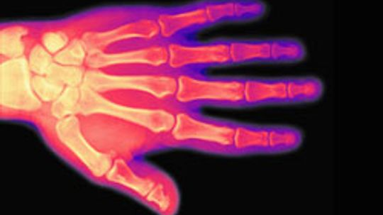 Cancer and Bone Pain