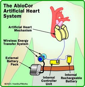 Diagram of the AbioCor heart