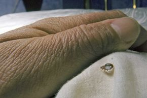 There's really only one sure way to rid your home of bedbugs: a pest-control professional.